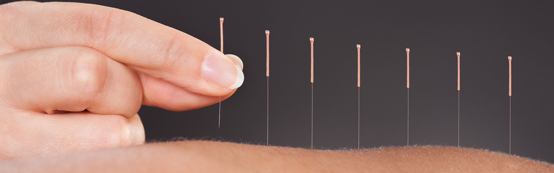 Acupuncture Glasgow